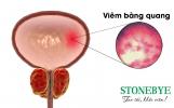 Điểm danh những nguyên nhân viêm bàng quang phổ biến nhất