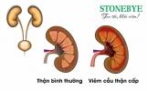 Viêm cầu thận cấp: Tổng hợp nguyên nhân, triệu chứng và cách trị