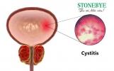 Bị viêm bàng quang dùng Stonebye được không?